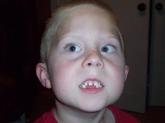CJ loses a tooth on the first day of Kindergarten
